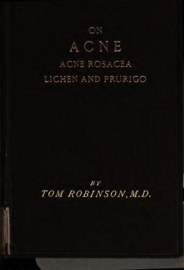 Archive: Lectures On Acne, Acne Rosacea, Lichen and Prurigo — Dr. Tom Robinson