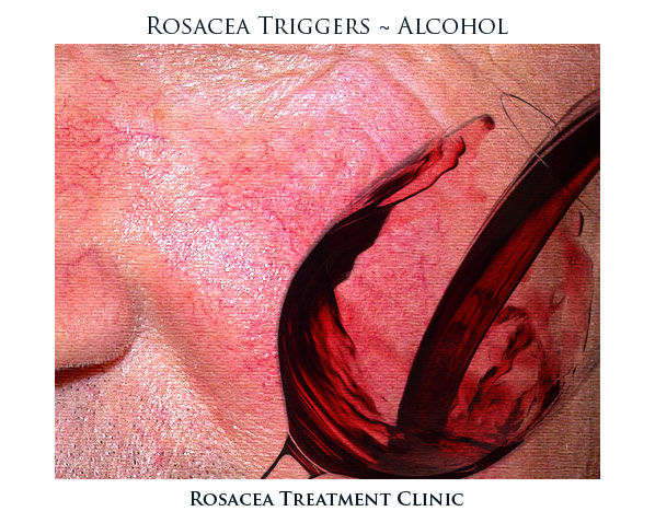 Rosacea is a common trigger for patients. It produces flushing and worsening rosacea symptoms in the majority of rosacea patients.
