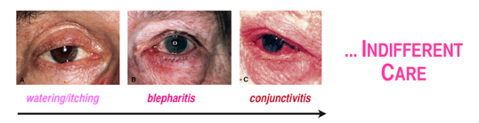 About Ocular Rosacea