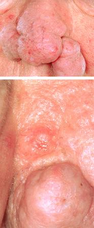 Basal Cell Carcinoma (Skin Cancer) & Rhinophyma [April 2007]